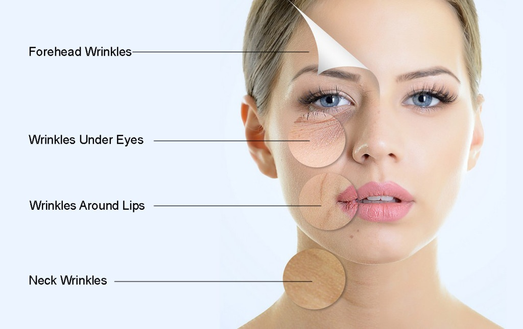 Facelift in Chandigarh | Face wrinkles treatment in Chandigarh