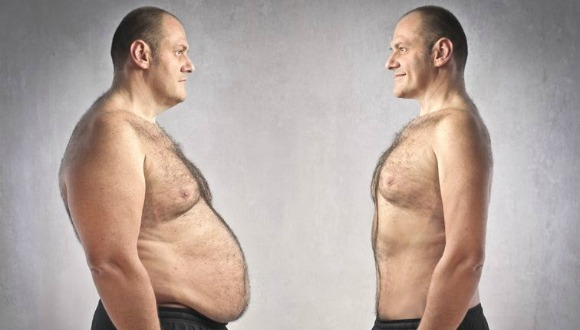liposuction before & after pictures