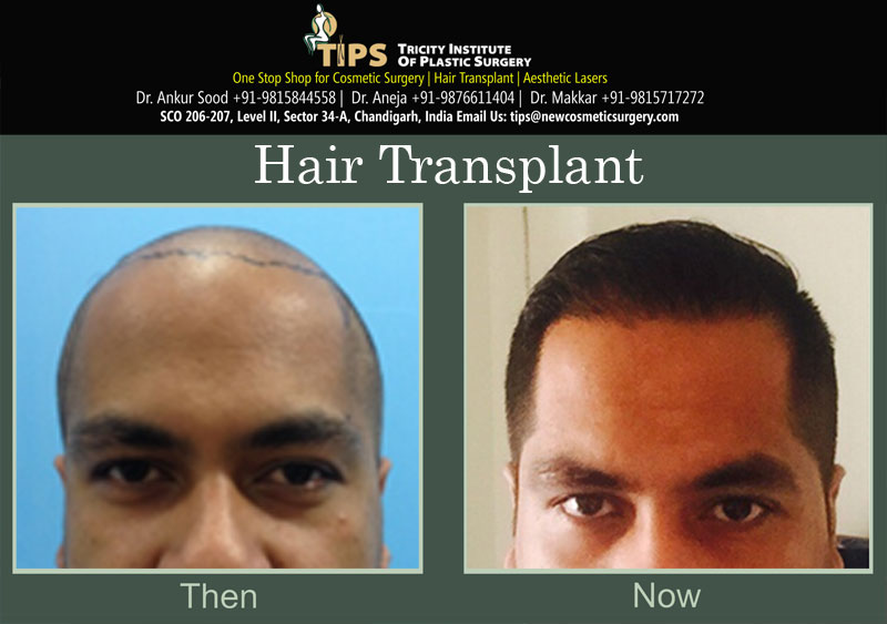Hair Transplant before & after images | Hair loss treatment before & after pictures