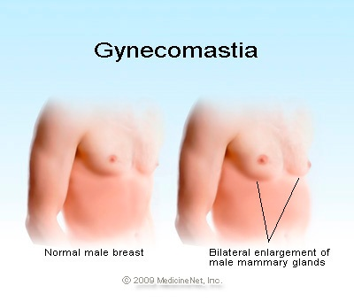 male breast reduction surgery cost  Gynaecomastia/male breast before & after pictures
