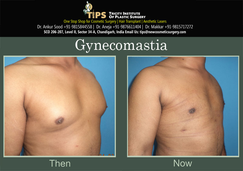 Gynecomastia in Chandigarh |