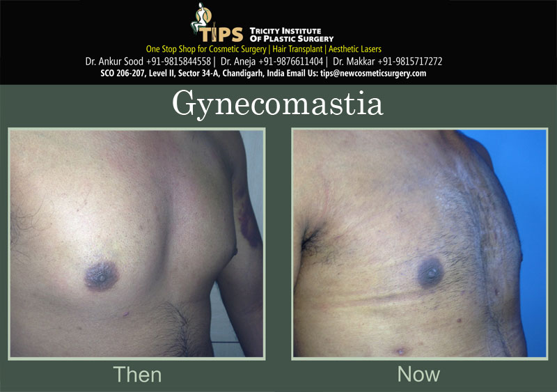 Gynecomastia before & after pictures | Gynecomastia cost in Chandigarh