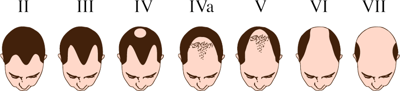 Stages of Baldness in people | Hair fall in men & women