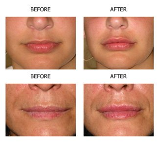 Lip Surgery Before & After images | Lips surgery in Chandigarh