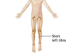 Leg defect surgery in Chandigarh, India |