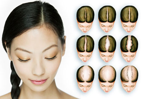 Women hairfall stages | Hair fall in women