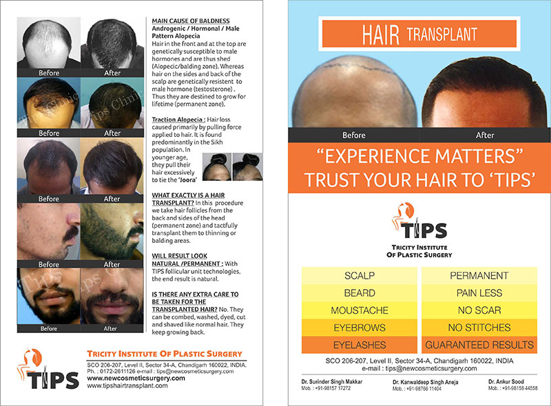 hair transplant in Chandigarh | Hair loss treatment in Punjab