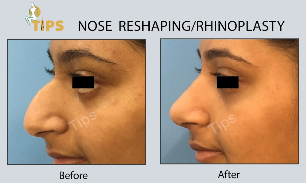 nose surgery in india, nose surgery cost in india, nose surgery cost in punjab