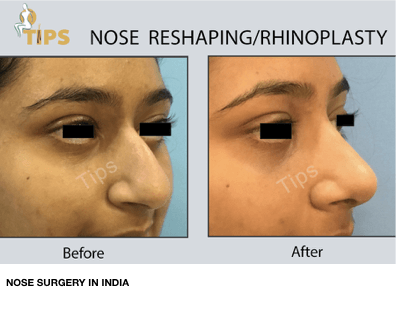 Rhinoplasty before & after pictures | Nose surgery in Chandigarh, India