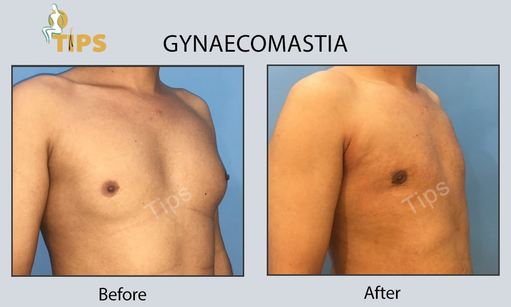 male breast surgery | gynecomastia surgery cost India | Gynaecomastia before & after pictures