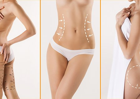 liposuction cost in india | tummy tuck surgery cost in india | liposuction in chandigarh