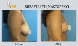 Breast lift before and after images | Breast lift surgery in Chandigarh, India
