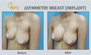 Breast Reconstruction before & after image | breast surgery in Chandigarh, India