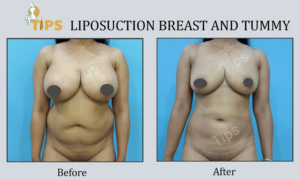 Liposuction -fat reduction before & after images | Liposuction in Chandigarh, India