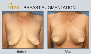 Breast Implant before & after surgery done at TIPS