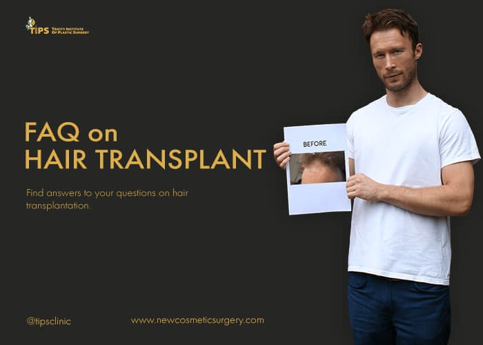 Hair Transplant FAQ | Frequently Asked Questions on Hair Transplant