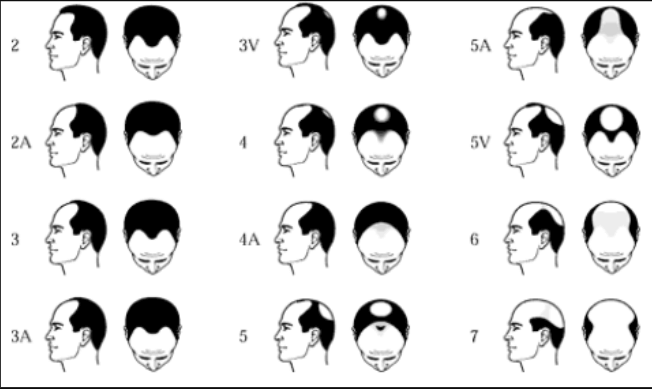 Norwood Scale for Diagnosing hair loss in Men