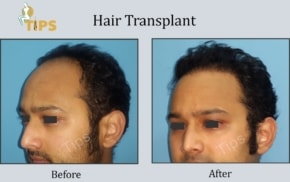 Hair Transplant FAQ in Punjab, India