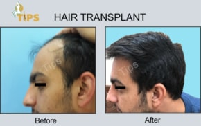 Hair Transplant FAQ in Chandigarh, India