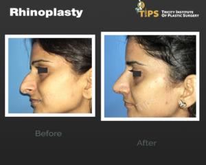 rhinoplasty---6