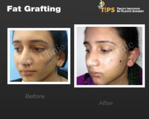 fat-grafting1