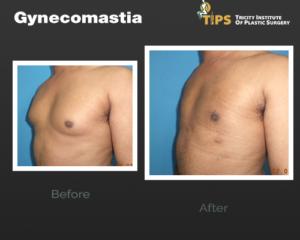 gynecomastia---